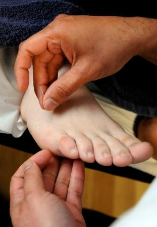 Acupuncture-needling-foot